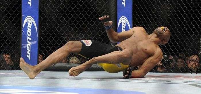 Андерсон Сілва отримав страшний перелом гомілки на рингу (11 фото)