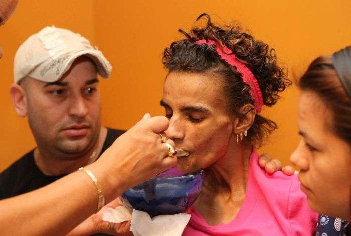 18-річна дівчина впала в кому після операції по збільшенню грудей (22 фото)