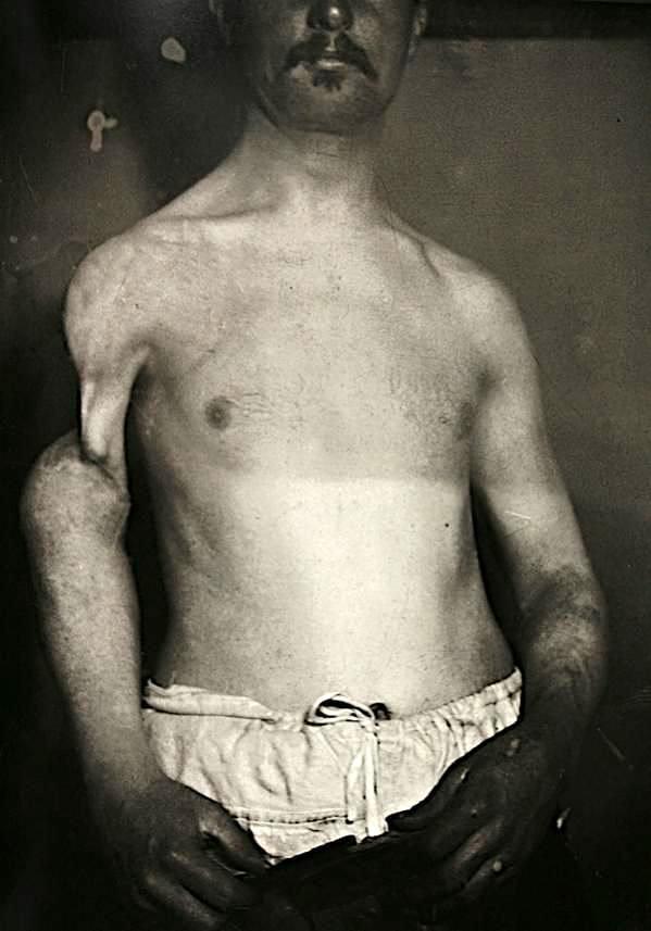 Люди с мутациями на снимках 19-го века